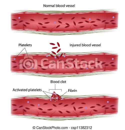 clotting, prozess, blut, eps8 - csp11382312
