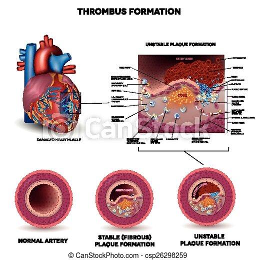 Coágulo, formación, sangre. Detallado, corazón, arterias, malsano ...