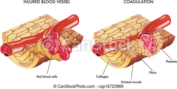 coagulation, blod - csp16723969