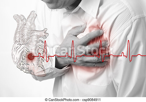 coeur, battements, attaque, fond, cardiogramme - csp9084911