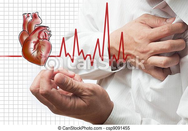coeur, battements, attaque, fond, cardiogramme - csp9091455