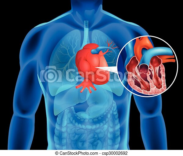 coeur, humain, cancer - csp30002692