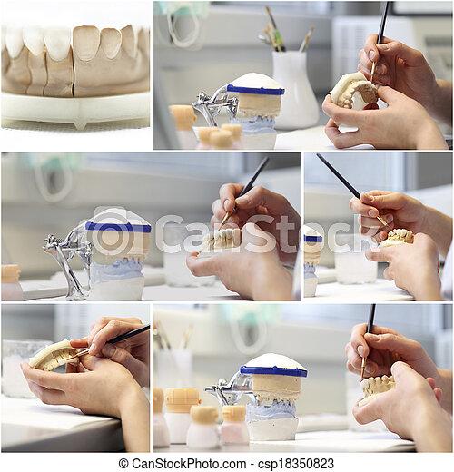 collage, dental, gegenstände, zahnarzt - csp18350823