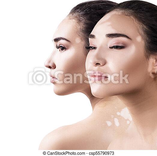 Collage Of Beautiful Woman With Vitiligo Disease Isolated On White
