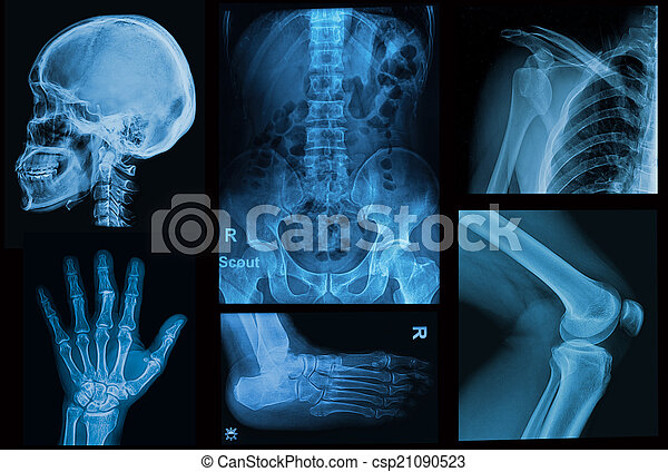 Collage x-rays image of human ,show body part of human - csp21090523