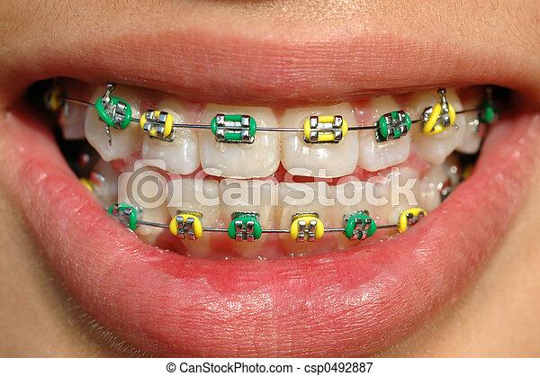 colorful braces - csp0492887