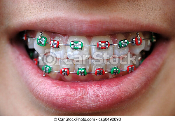 colorful braces - csp0492898