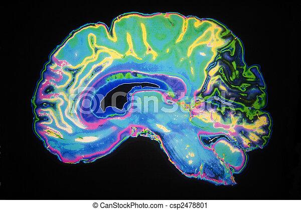 Coloured MRI Scan Of Human Brain - csp2478801