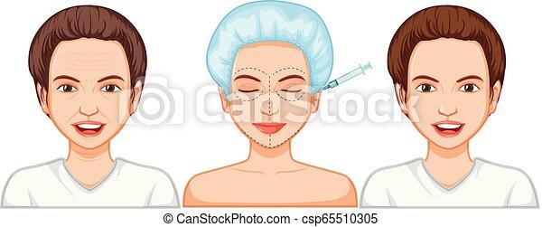 comparaison, injection, botox, femme - csp65510305