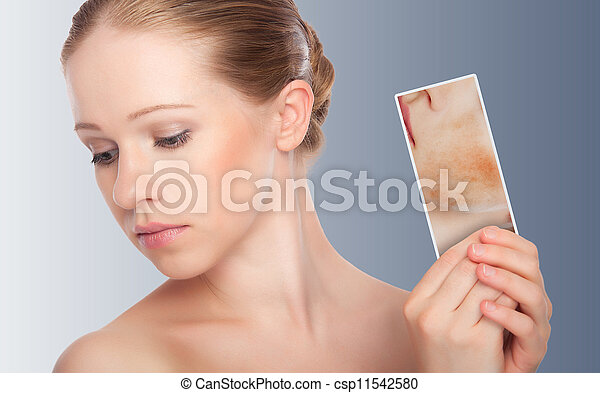 concept skincare . Skin of beauty young woman with redness, skin problems, acne, rashes, burns on a gray background - csp11542580
