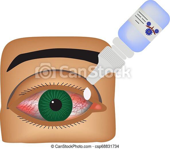 conjunctivitis., 目, infographics., イラスト, 隔離された, drops., ベクトル, 炎症, 背景, 赤み, vessels., eye. - csp68831734