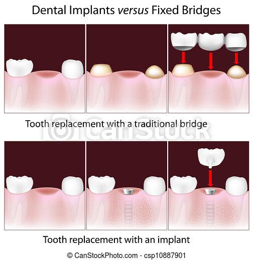 Implantes dentales contra puente fijo - csp10887901