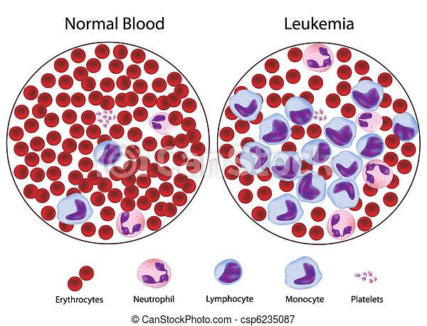 contro, leukemic, sangue, normale - csp6235087