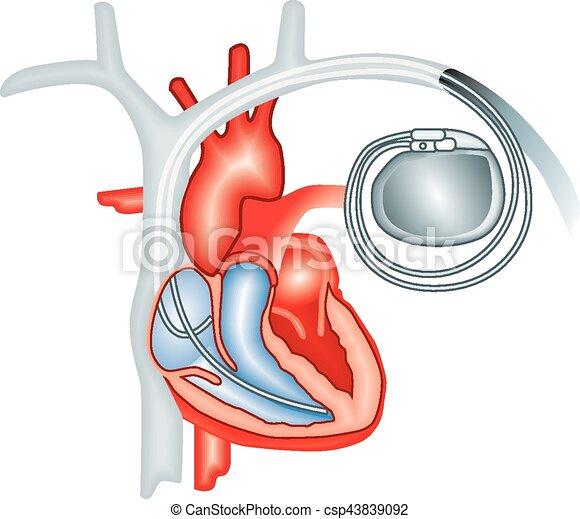 que es un catéter linear unit el corazon