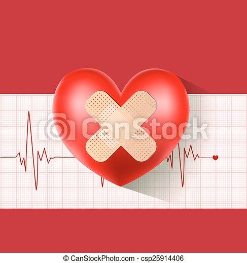 Corazón con yeso en cardiograma - csp25914406