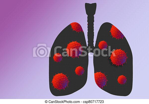 Coronavirus disease virus in human lungs. Novel coronavirus COVID-19 outbreak - csp80717723