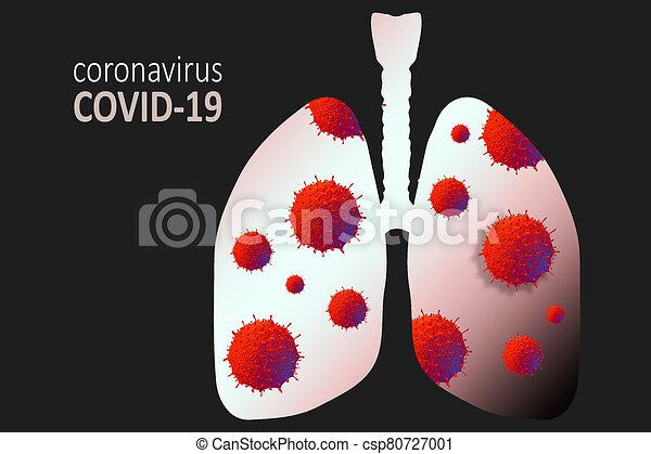Coronavirus disease virus in human lungs. Novel coronavirus COVID-19 outbreak - csp80727001