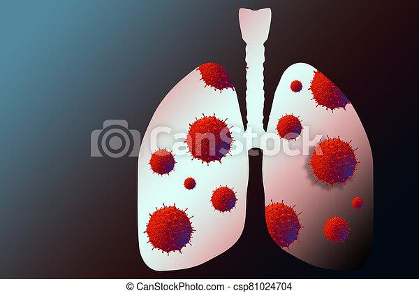Coronavirus disease virus in human lungs. Novel coronavirus COVID-19 outbreak - csp81024704