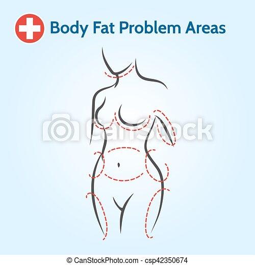 corps, problème, femme, graisse, secteurs - csp42350674