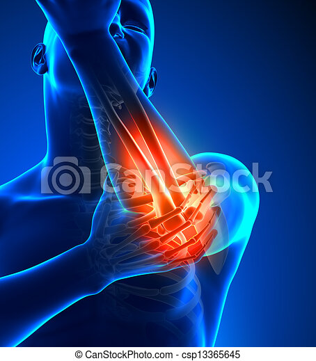 coude, douleur - csp13365645