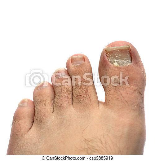 foot cracking under toes