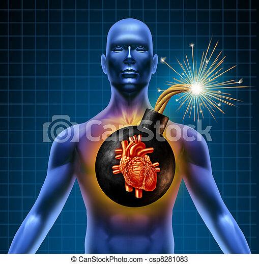 crise cardiaque, bombe, humain, temps - csp8281083