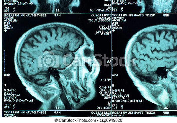 Ct scan of the human brain tile - csp6949020