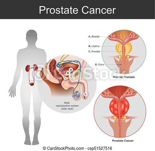 Cuerpo, cancer., ilustración, anatomía, part., próstata. Cuerpo ...