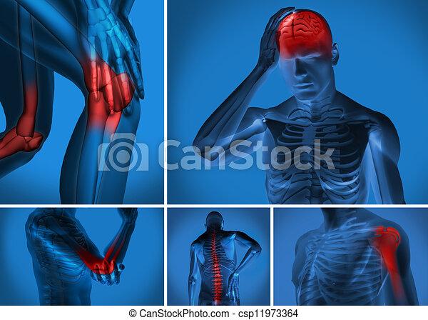 cuerpo, vario, dolor - csp11973364