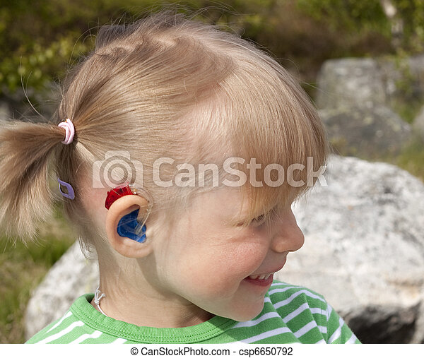 Cute happy little girl (4 years old) with hearing aid - csp6650792