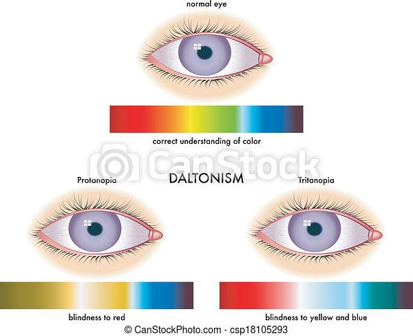 daltonism - csp18105293