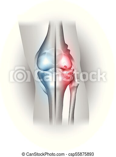Damaged and healthy joint design - csp55875893