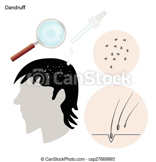 dandruff with the disease prevention and treatment - csp27669993