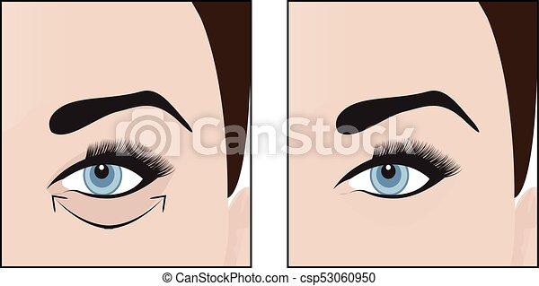 Dark circles under eyes to remove. vector illustration.