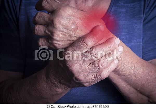 La mano deforme de la artritis reumatoide - csp36461599