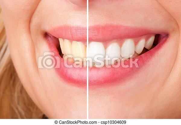 dentaire, blanchir - csp10304609