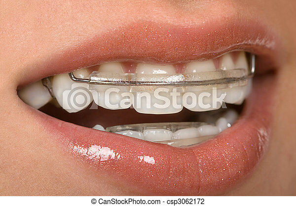 Dental Braces - csp3062172