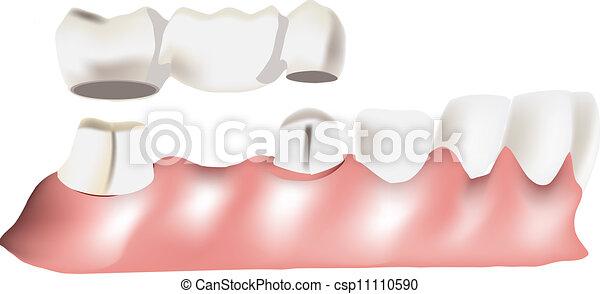 dental bridge - csp11110590