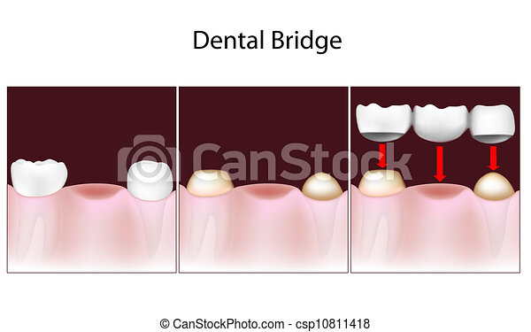 Dental bridge procedure - csp10811418