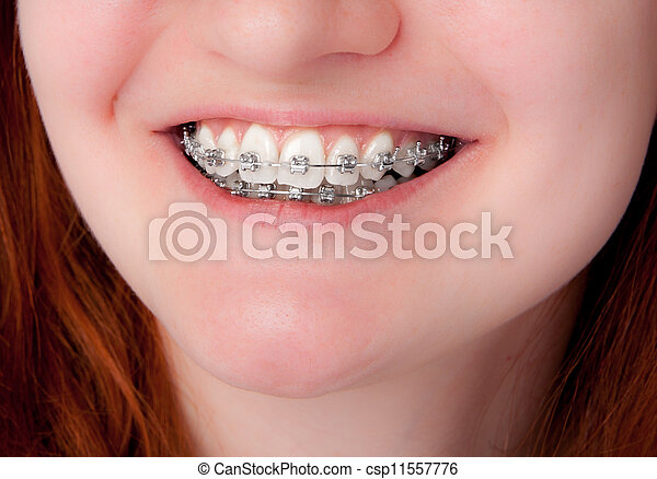 dental care concept. Teeth with braces - csp11557776