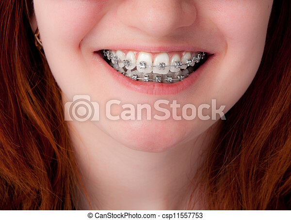 dental care concept. Teeth with braces - csp11557753