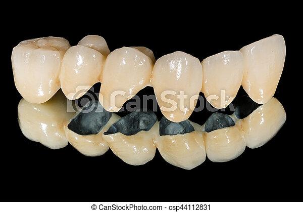 Puente de cerámica dental - csp44112831