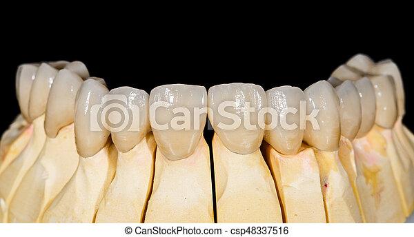 Puente de cerámica dental - csp48337516