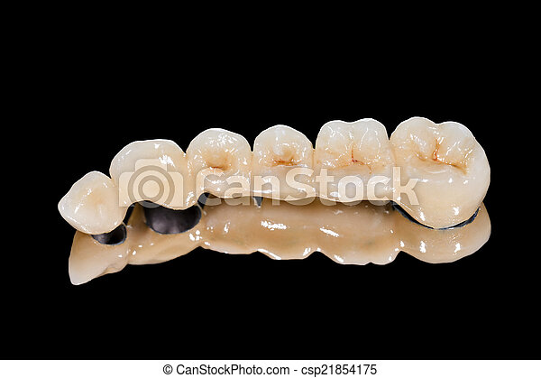 Dental ceramic bridge - csp21854175