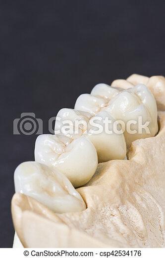 dental ceramic bridge - csp42534176