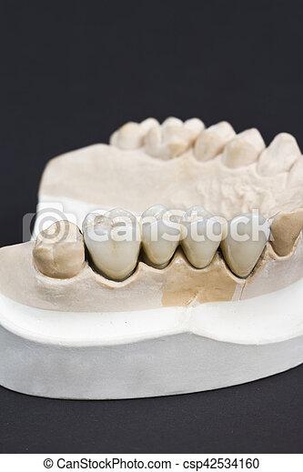 dental ceramic bridge - csp42534160