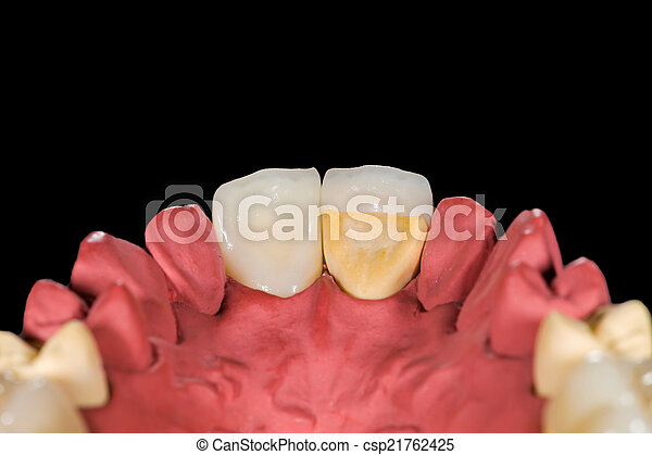 Dental ceramic crowns - csp21762425