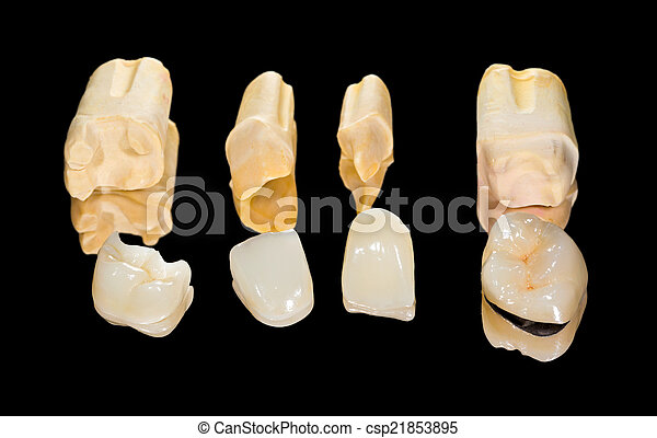 Dental ceramic crowns - csp21853895