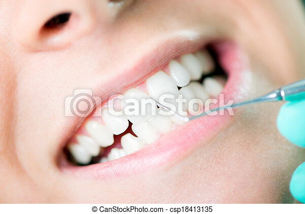 Dental Cleaning - csp18413135