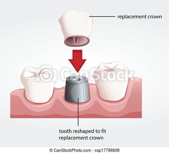 Dental crown procedure - csp17796608